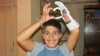 Felipe Miranda y su mano impresa en 3D